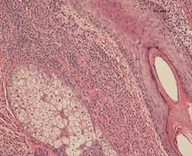 amoxil capsules 500mg pregnancy